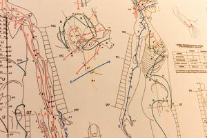 planche de points d'acupuncture